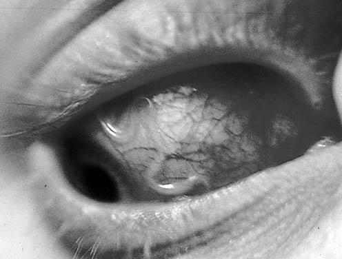 Паразиты внутри вас / Паразиты внутри человека , картинка номер 1054963.